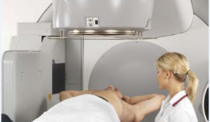 放射線治療