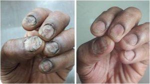 爪 乾癬ウィートグラス療法で回復経過例