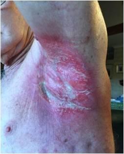 放射線治療3日後の時点 脇の下の皮膚炎やけど