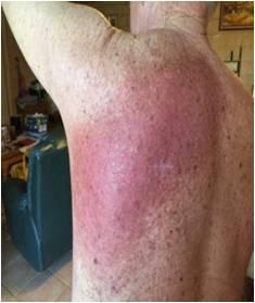 放射線療法後の患部背中