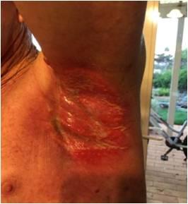 放射線療法後の脇の下皮膚炎症