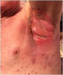 放射線治療後脇の下皮膚炎症