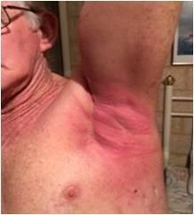放射線治療後脇の下皮膚炎症回復
