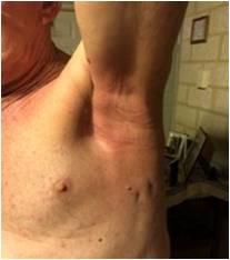 放射線治療後脇の下皮膚炎症完治