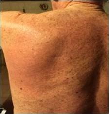 放射線治療後背中