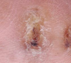 糖尿病性の足潰瘍 左足 ウィートグラス療法経過例5