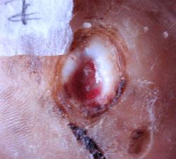 糖尿病性の足潰瘍 左足 ウィートグラス療法経過例2