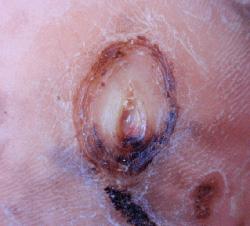 糖尿病性の足潰瘍 左足 ウィートグラス療法経過例3