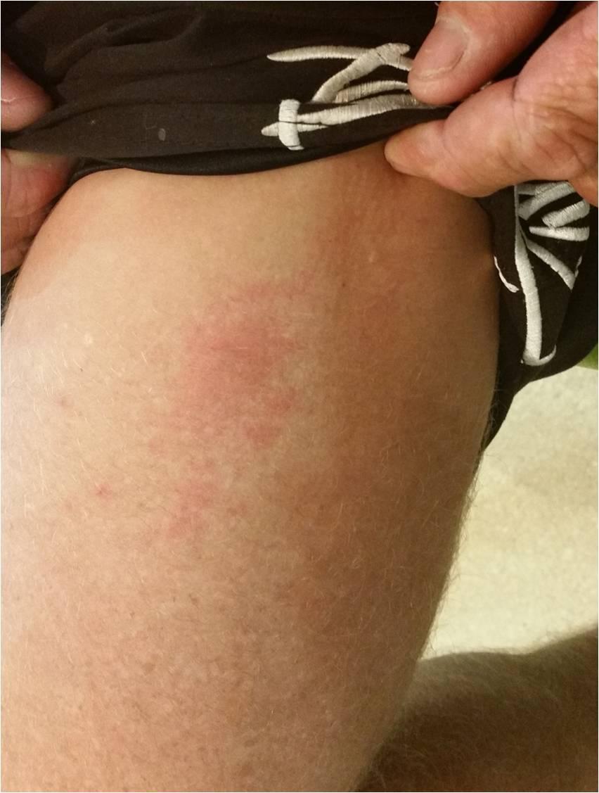 くらげ カツオノエボシ刺され傷例 足 ウィートグラス療法開始後
